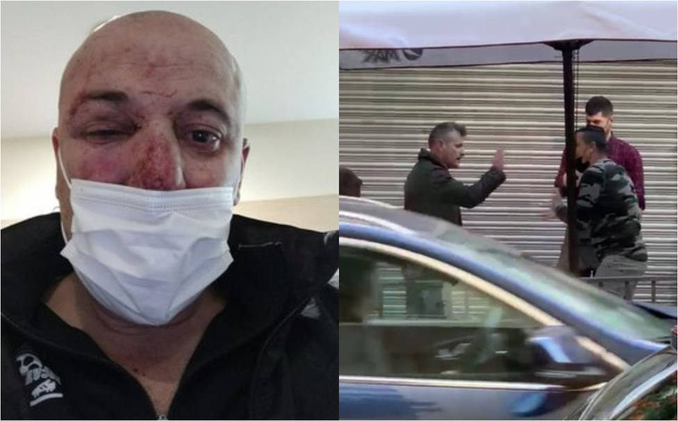ضرب الشرطة